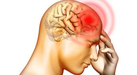 Glavobolja - Prolazni simptom ili razlog za uzbunu