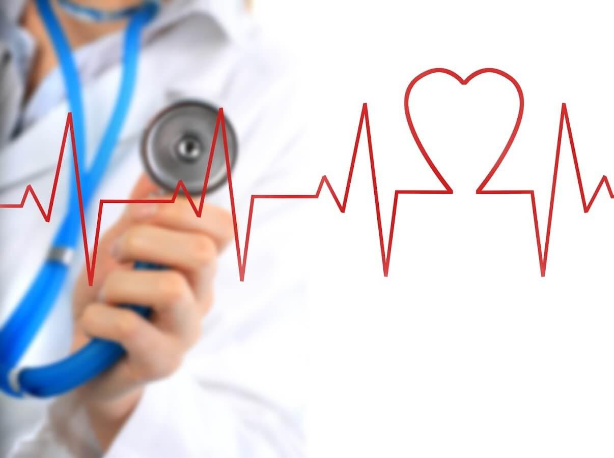 EKG srca