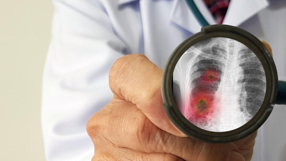 kako se zaštititi od korona virusa Dr Nestorov 1