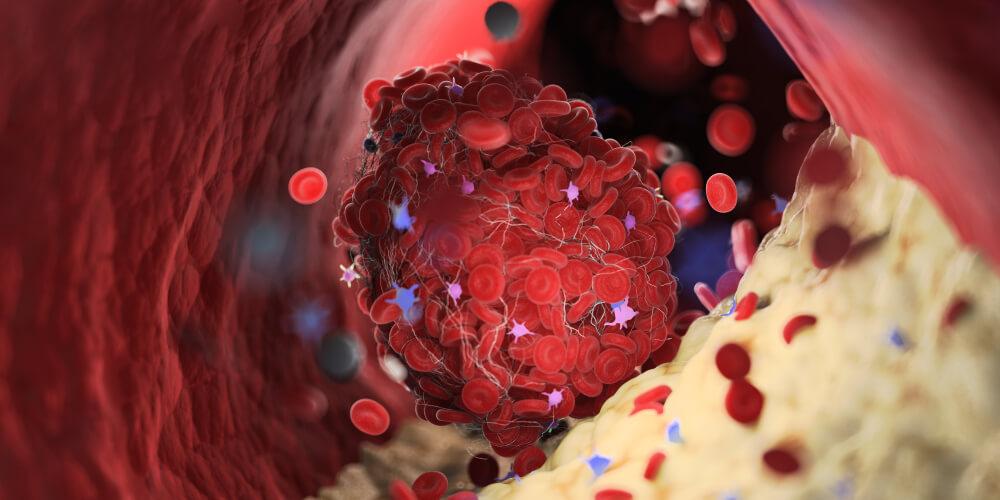 Tromb - Kako da simptome prepoznate na vreme